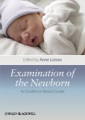Examination of the Newborn. An Evidence Based Guide